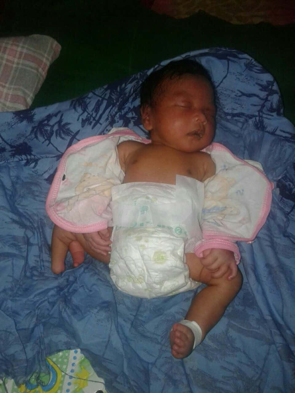 Jihan Novitasari terlahir tanpa anus